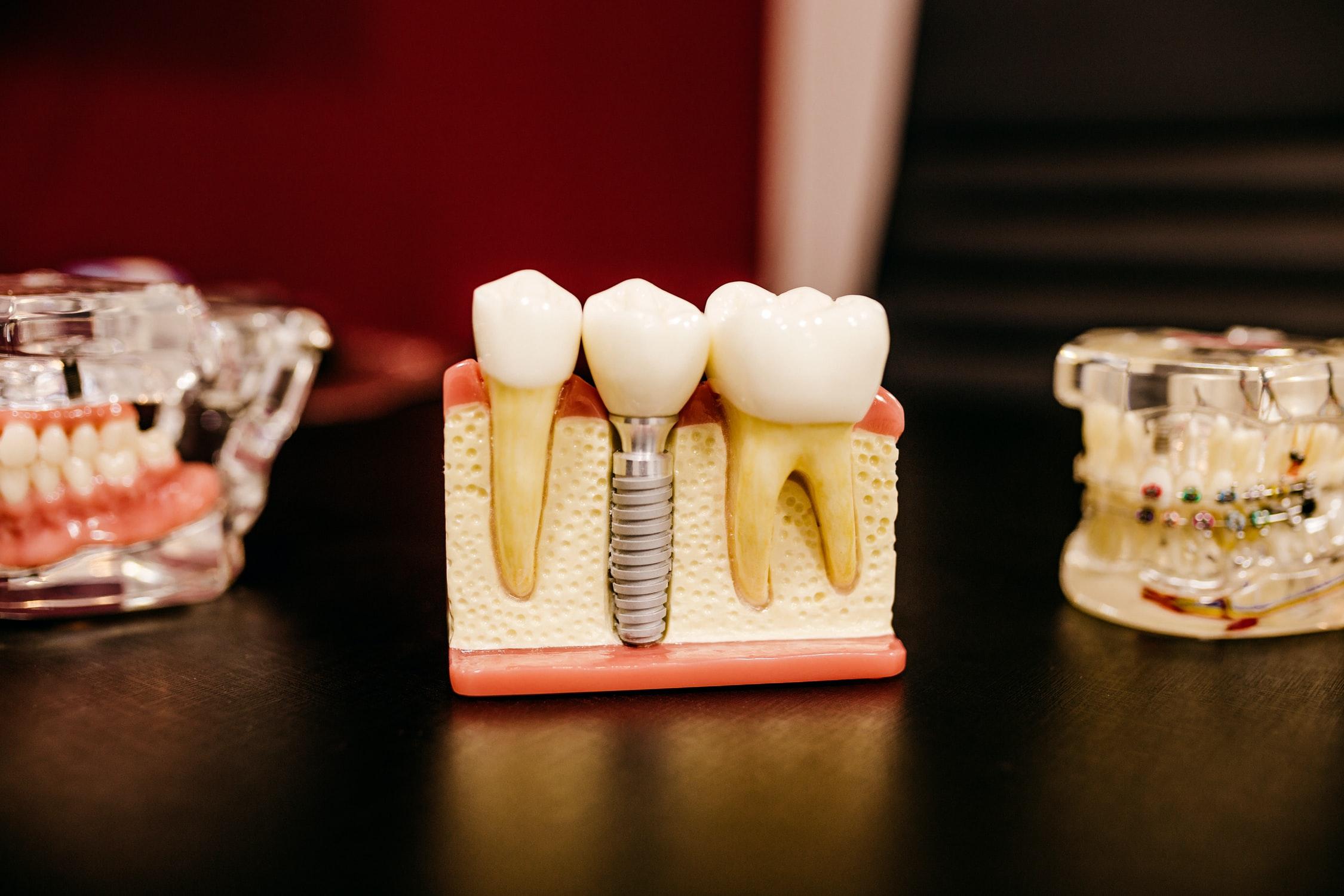 Legătura dintre aparat dentar și implant – la ce procedură trebuie să apelezi mai întâi?